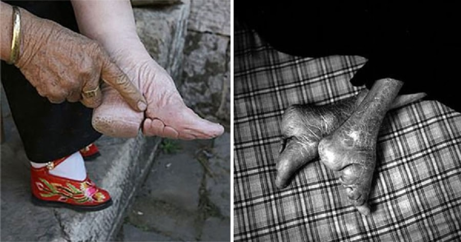 The Last Woman To Follow China's 1000-Year-Old Foot-Binding ...