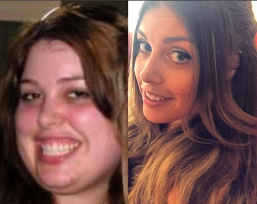 15 Photos That Show How Weight Loss Can Affect The Face