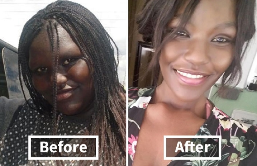 15 Photos That Show How Weight Loss Can Affect The Face Lexi And Danny Reed Guff