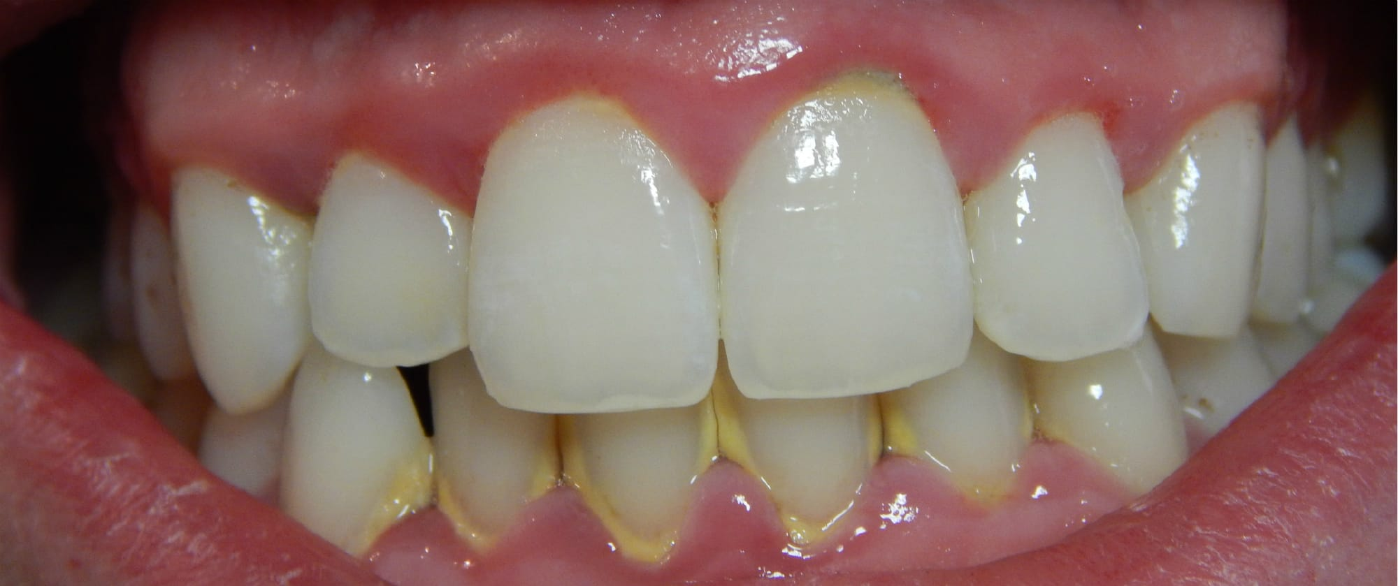 You Can Remove Tartar From Your Teeth With One Simple