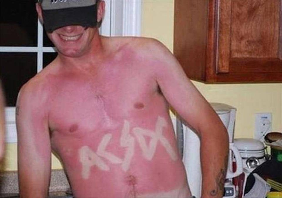 People That Got Way Too Creative With Their Sunburns - Suntanned ...