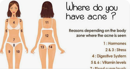 The Location Of Acne On Your Body Has A Secret Meaning You Ll Want To Know Here S The Truth Acne Is A Major Bummer Guff