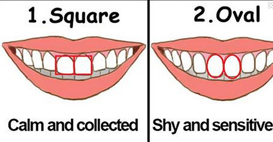 What The Shape And Size Of Your Teeth Say About You
